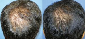 DERMAPEN - Zdj©cia przed i po - leczenie ąysienia 01