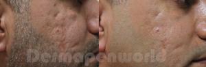 DERMAPEN - Zdj©cia przed i po - leczenie blizn potr•dzikowych 01